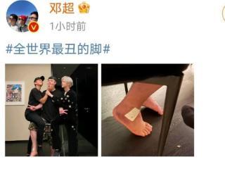 邓超晒陈赫脚脖特写,称他为世界最丑,网友:好兄弟之间的玩笑话 邓超