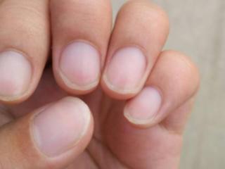 梦见指甲脱落代表何意思?男人梦到指甲脱了的含义是什么? 身体,梦见指甲脱落