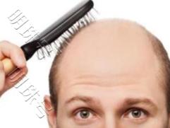 梦到自己头发掉了好多有什么寓意?是要秃头了吗? 身体,秃顶,脱发严重