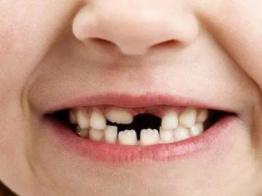 睡觉的时候梦见自己掉牙有什么预兆?梦见掉牙好不好? 身体,掉牙,梦见掉牙代表什么