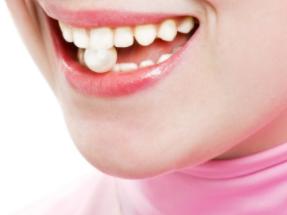 梦见自己长蛀牙在现实中运势好吗?梦见长蛀牙预示什么 身体,长蛀牙,梦见自己长蛀牙的寓意